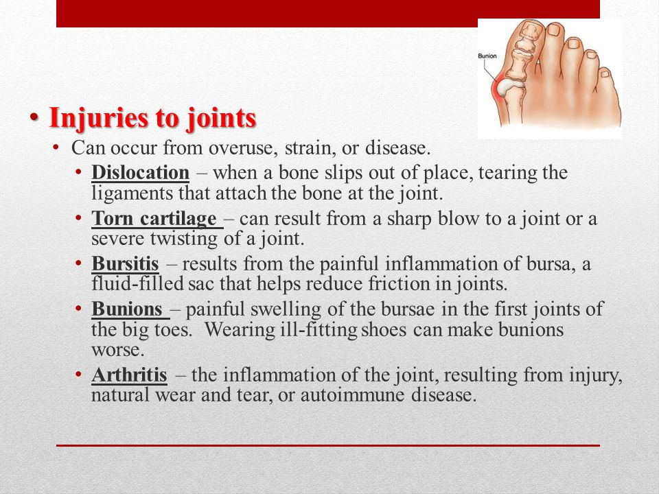 Injuries to joints Can occur from overuse, strain, or disease.