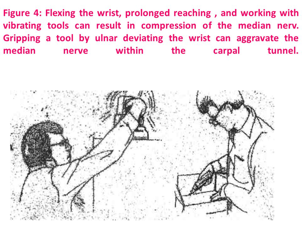 Figure 4: Flexing the wrist, prolonged reaching , and working with vibrating tools can result in compression of the median nerv.