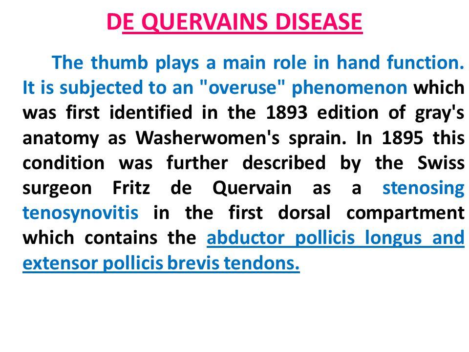DE QUERVAINS DISEASE