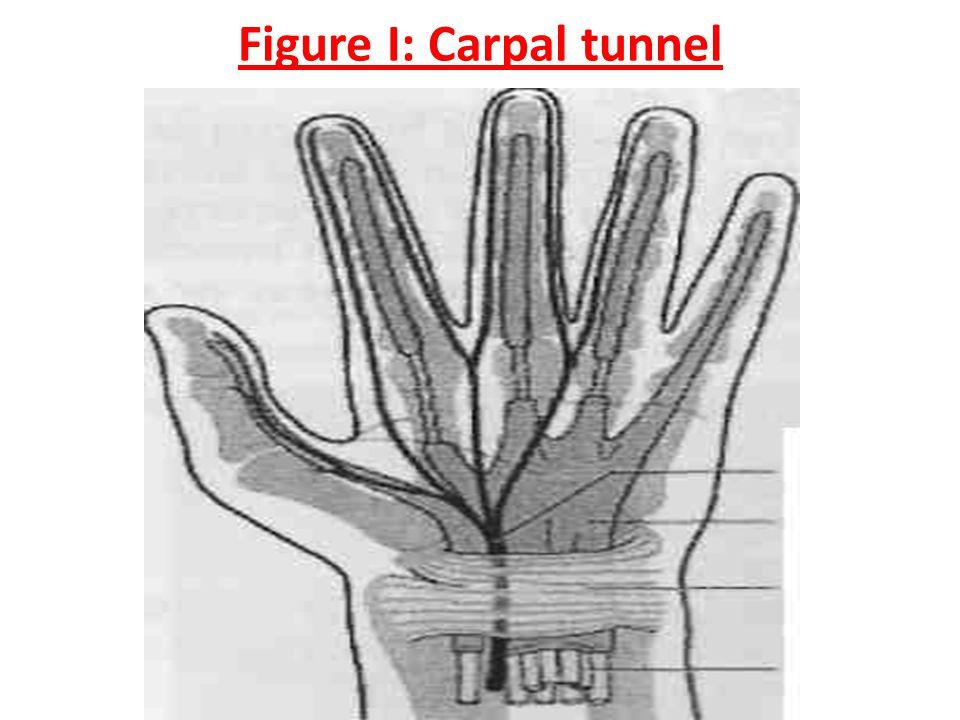 Figure I: Carpal tunnel
