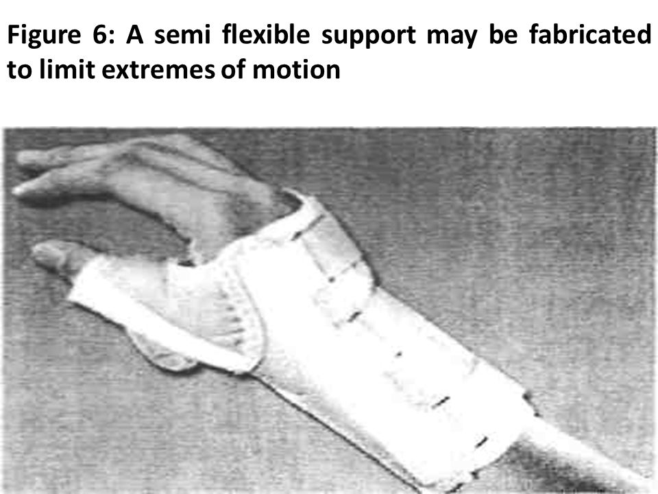 Figure 6: A semi flexible support may be fabricated to limit extremes of motion
