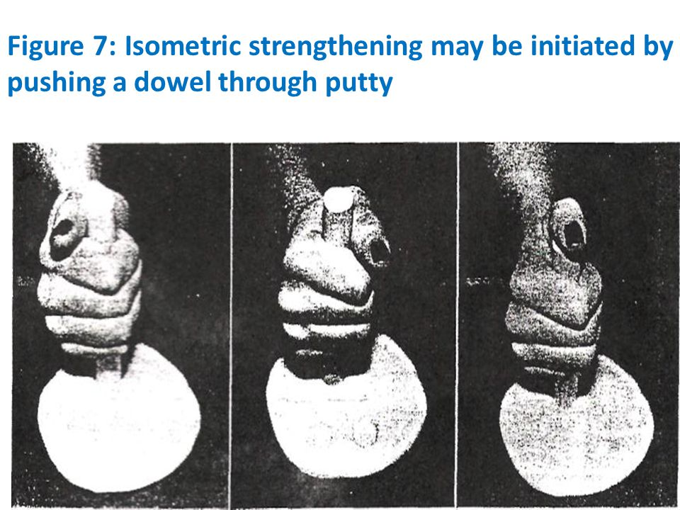 Figure 7: Isometric strengthening may be initiated by pushing a dowel through putty
