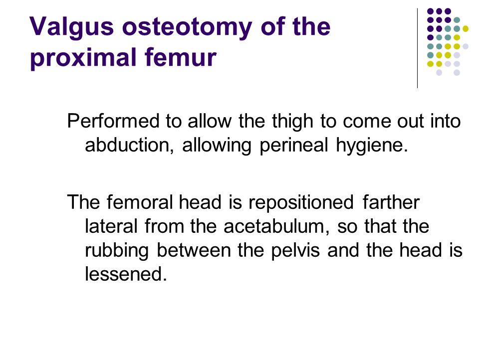 Valgus osteotomy of the proximal femur