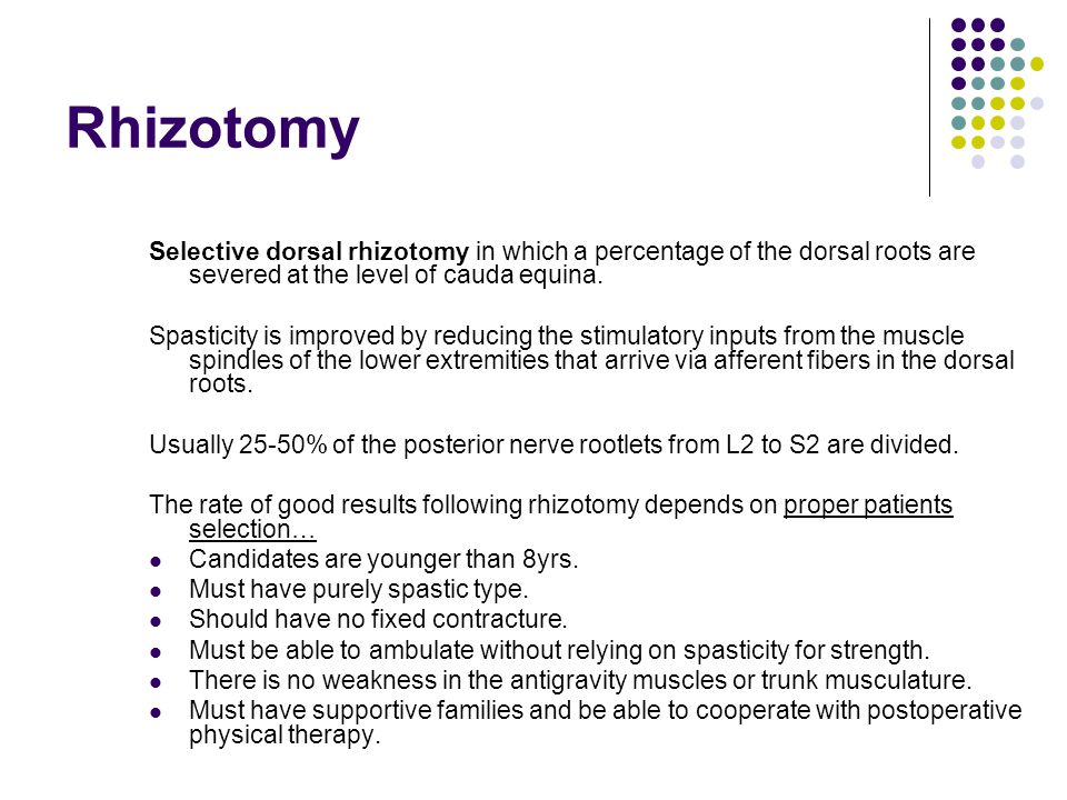 Rhizotomy Selective dorsal rhizotomy in which a percentage of the dorsal roots are severed at the level of cauda equina.