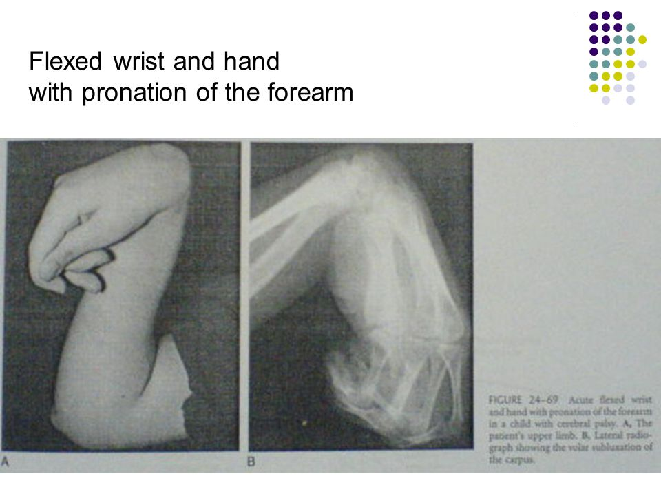 Flexed wrist and hand with pronation of the forearm