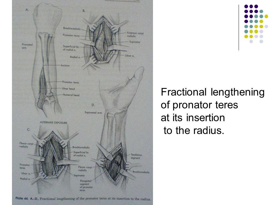 Fractional lengthening