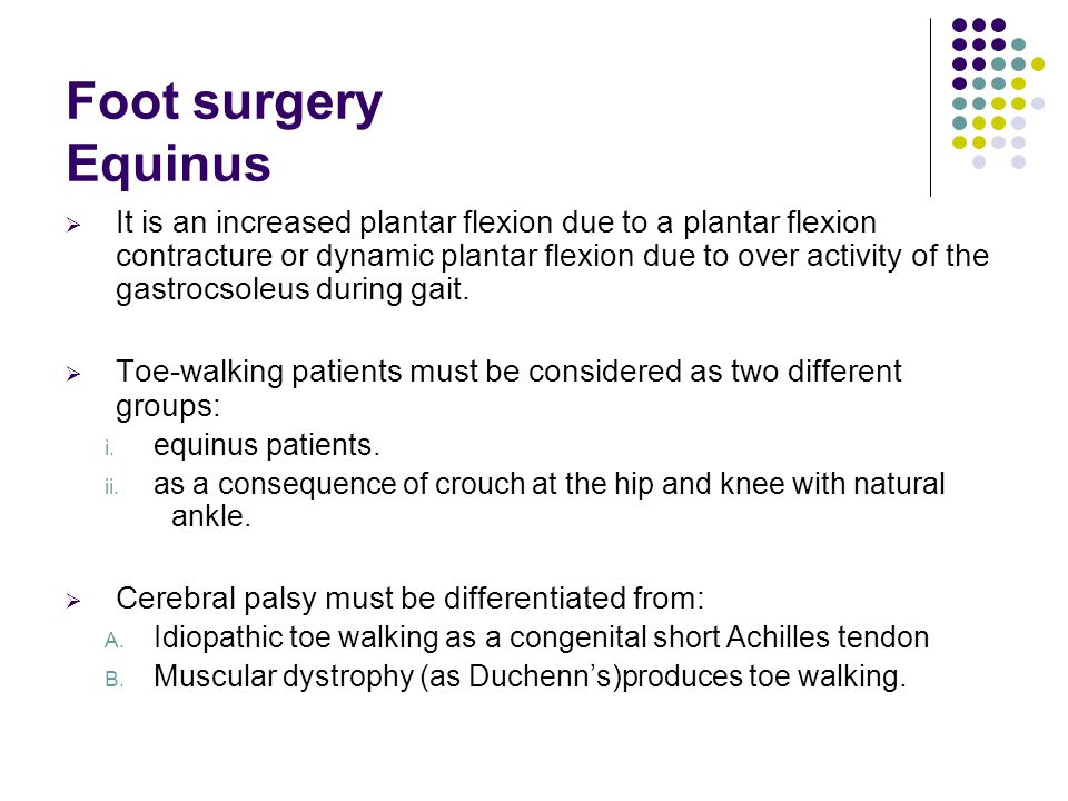 Foot surgery Equinus