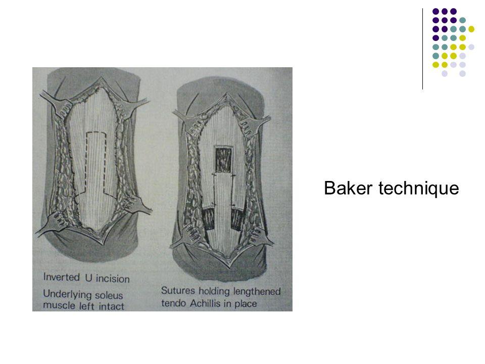 Baker technique