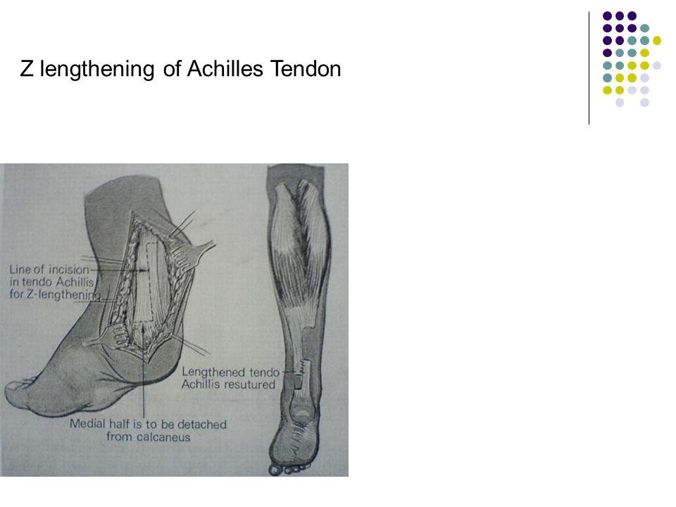Z lengthening of Achilles Tendon