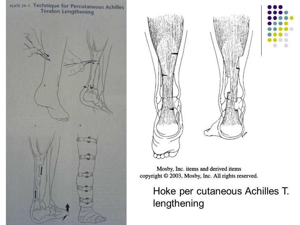Hoke per cutaneous Achilles T.