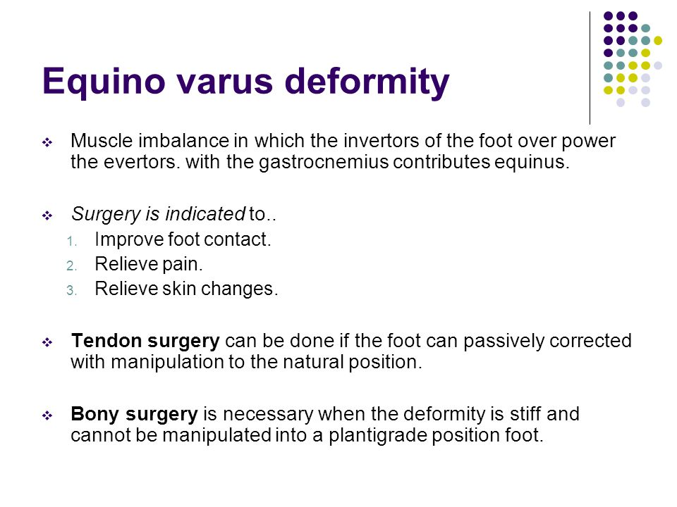 Equino varus deformity