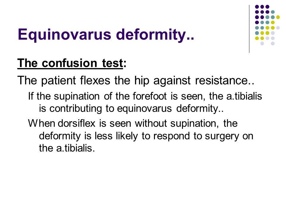 Equinovarus deformity..