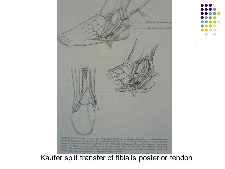 Kaufer split transfer of tibialis posterior tendon