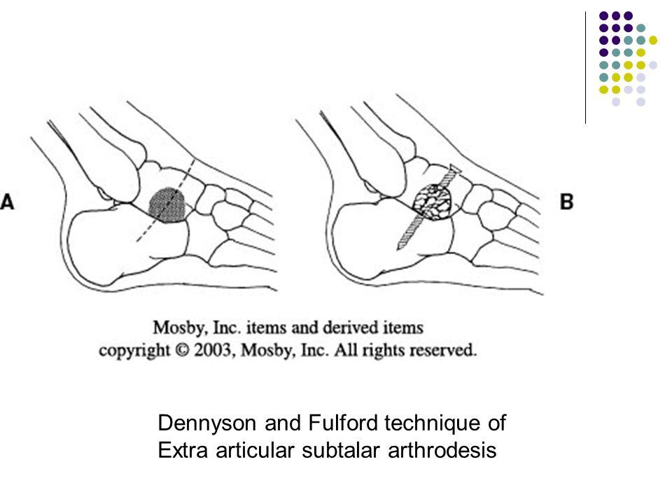Dennyson and Fulford technique of