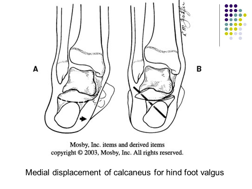 Medial displacement of calcaneus for hind foot valgus