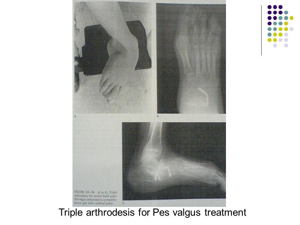 Triple arthrodesis for Pes valgus treatment