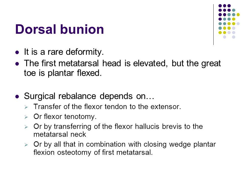 Dorsal bunion It is a rare deformity.