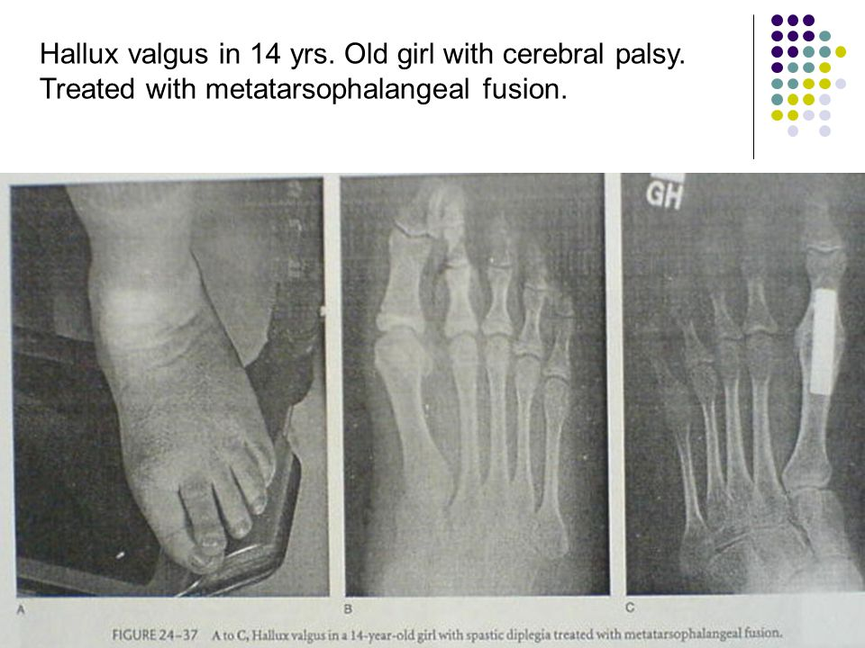 Hallux valgus in 14 yrs. Old girl with cerebral palsy.