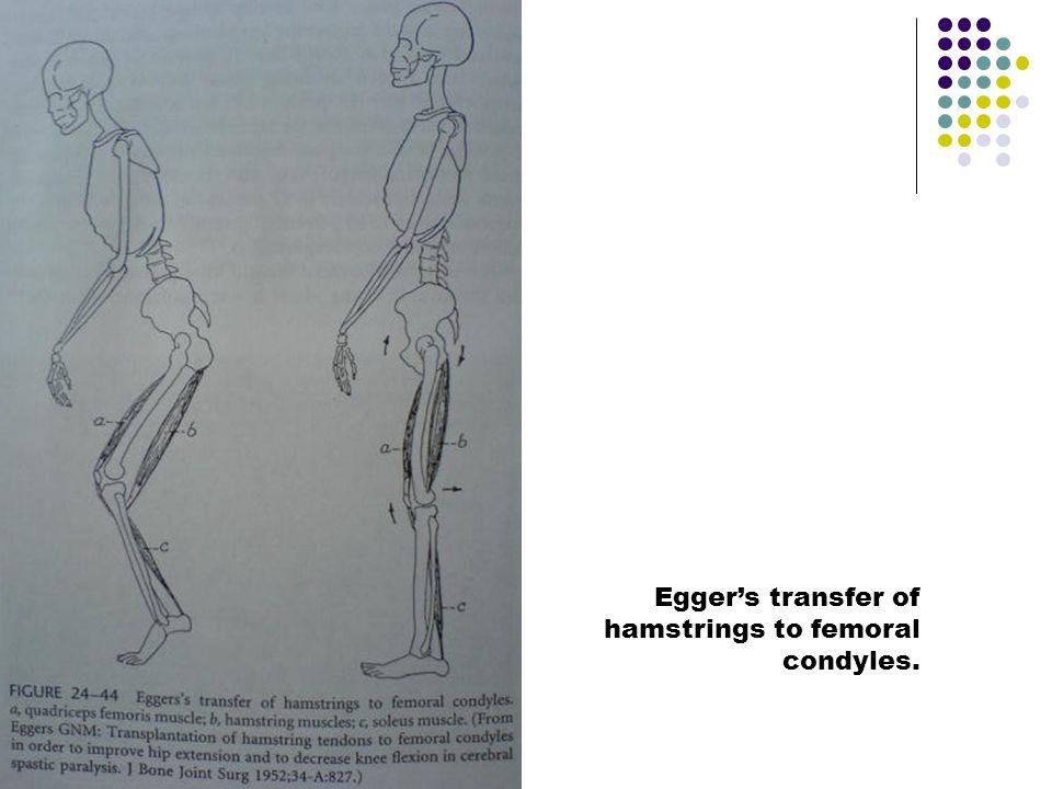 Egger's transfer of hamstrings to femoral condyles.