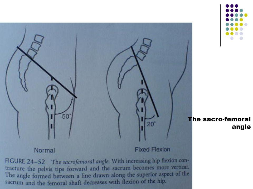 The sacro-femoral angle