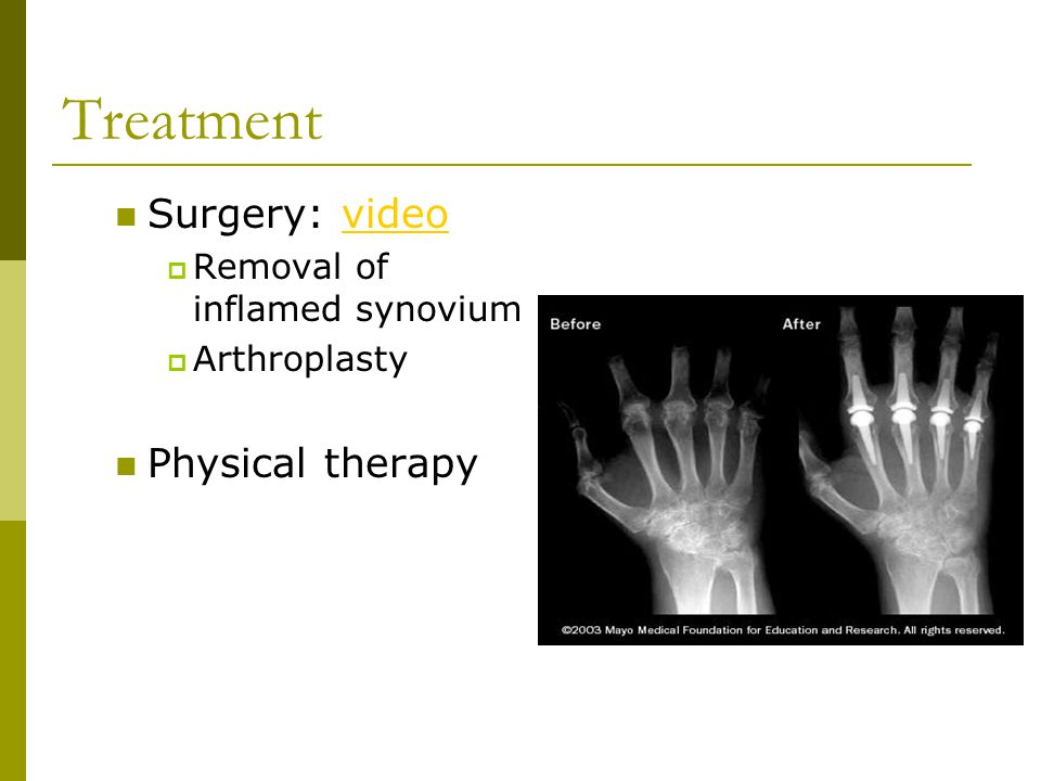 Treatment Surgery: video Physical therapy Removal of inflamed synovium