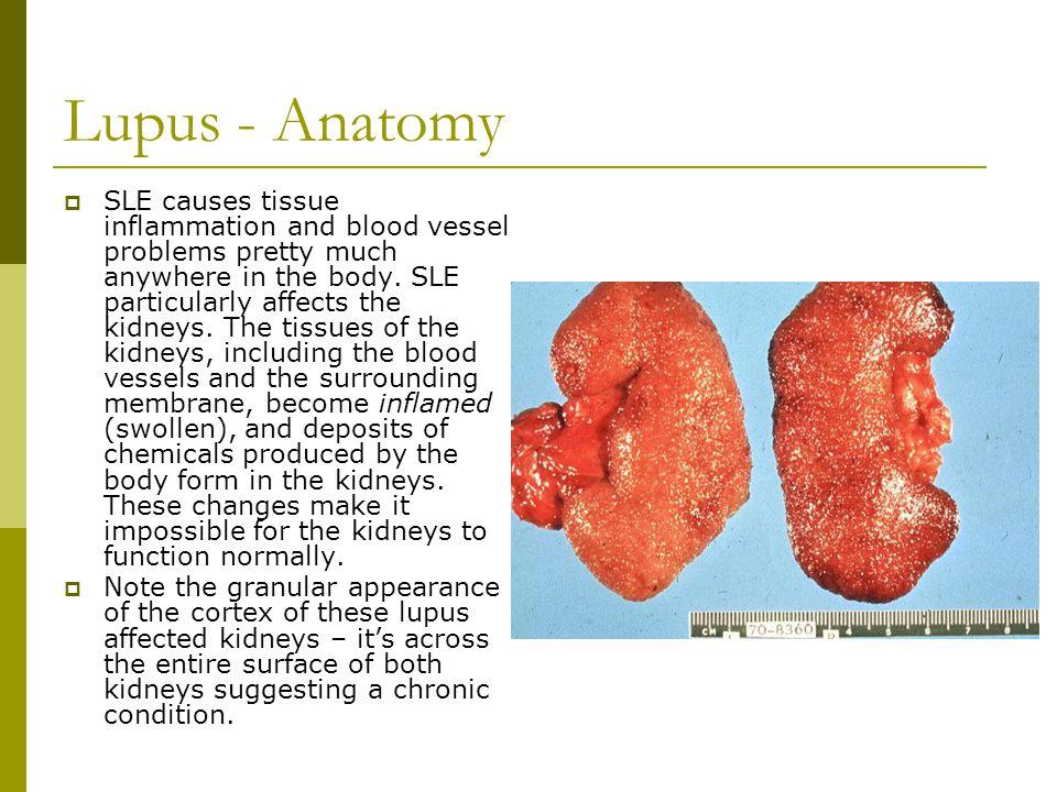 Lupus - Anatomy