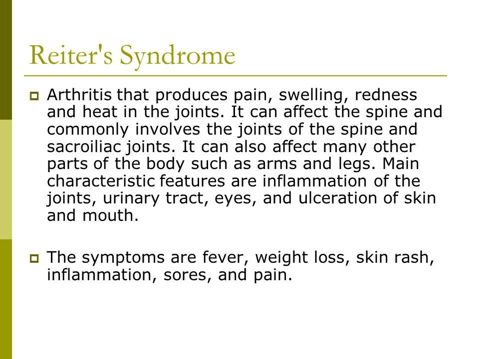 Reiter s Syndrome