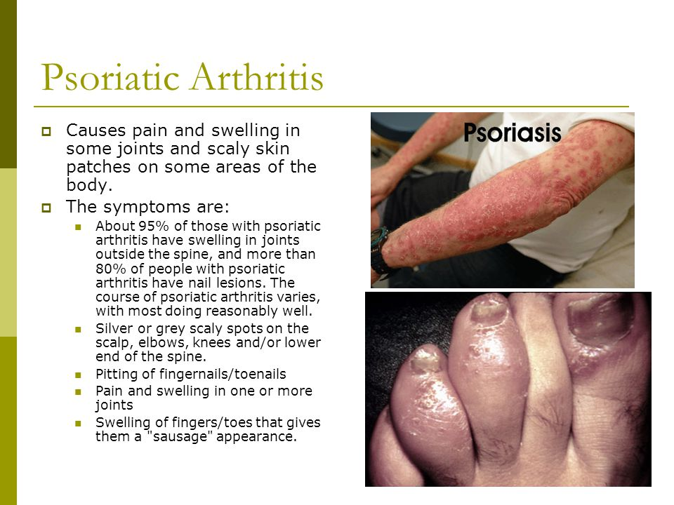 Psoriatic Arthritis Causes pain and swelling in some joints and scaly skin patches on some areas of the body.