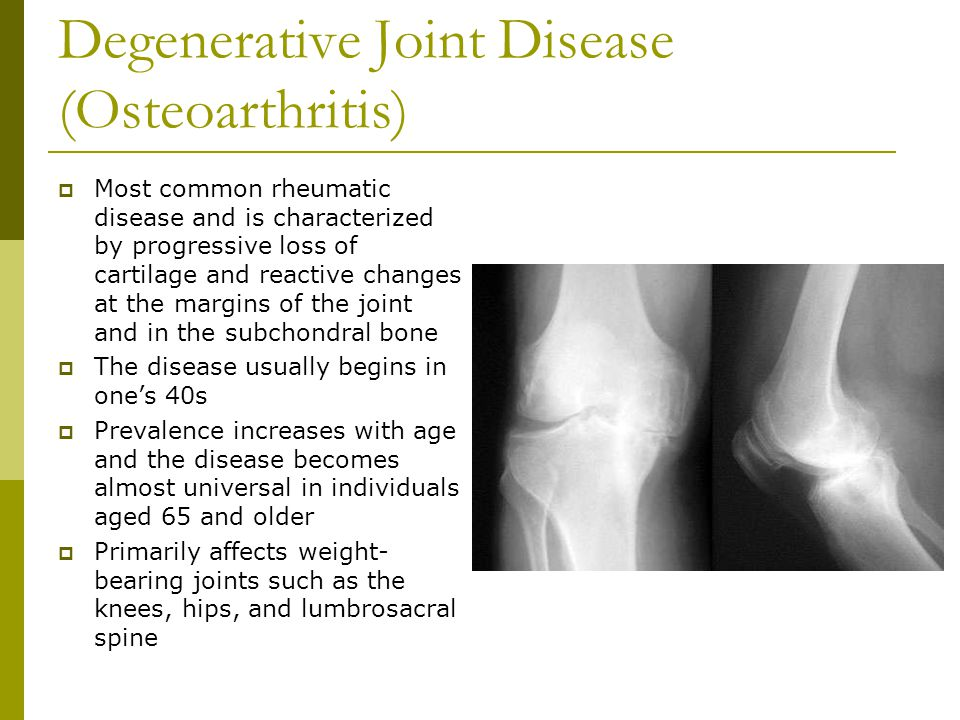 the clinical description of the degenerative disease arthrosis