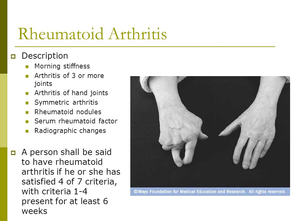 Rheumatoid Arthritis Description