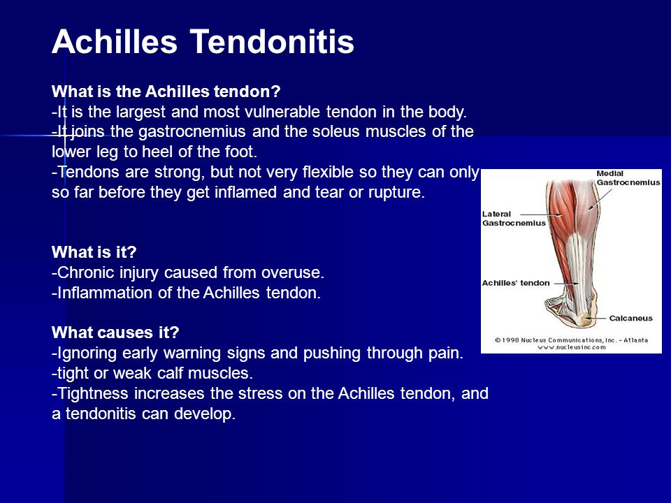 Achilles Tendonitis What is the Achilles tendon