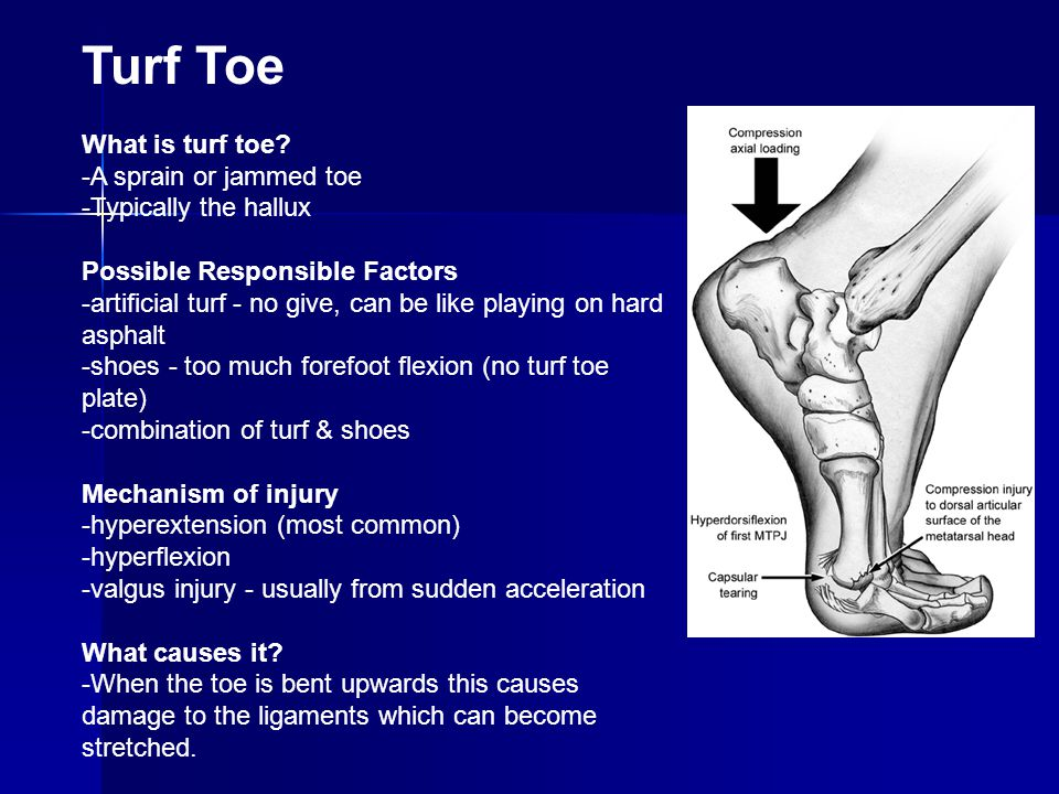 Turf Toe What is turf toe -A sprain or jammed toe