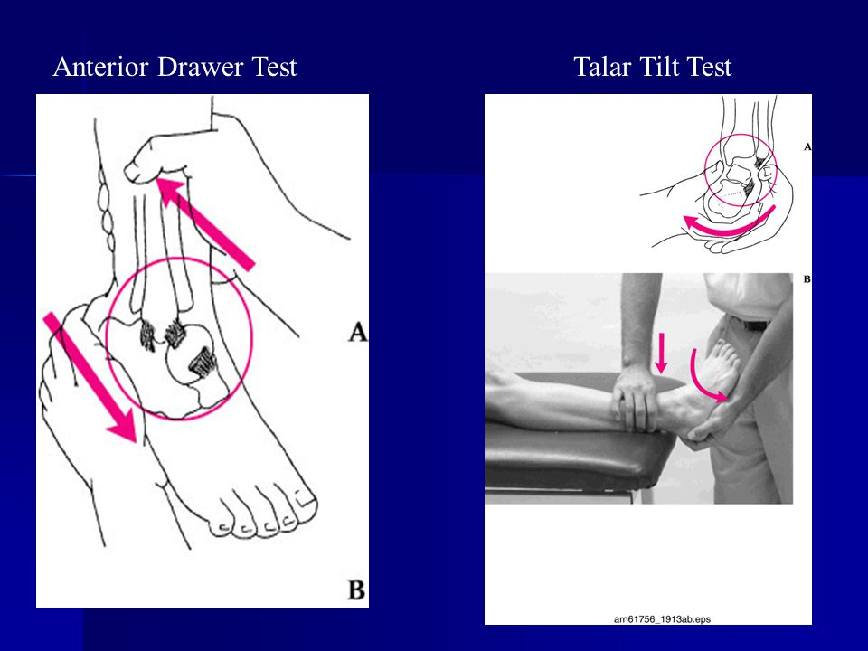 Anterior Drawer Test Talar Tilt Test