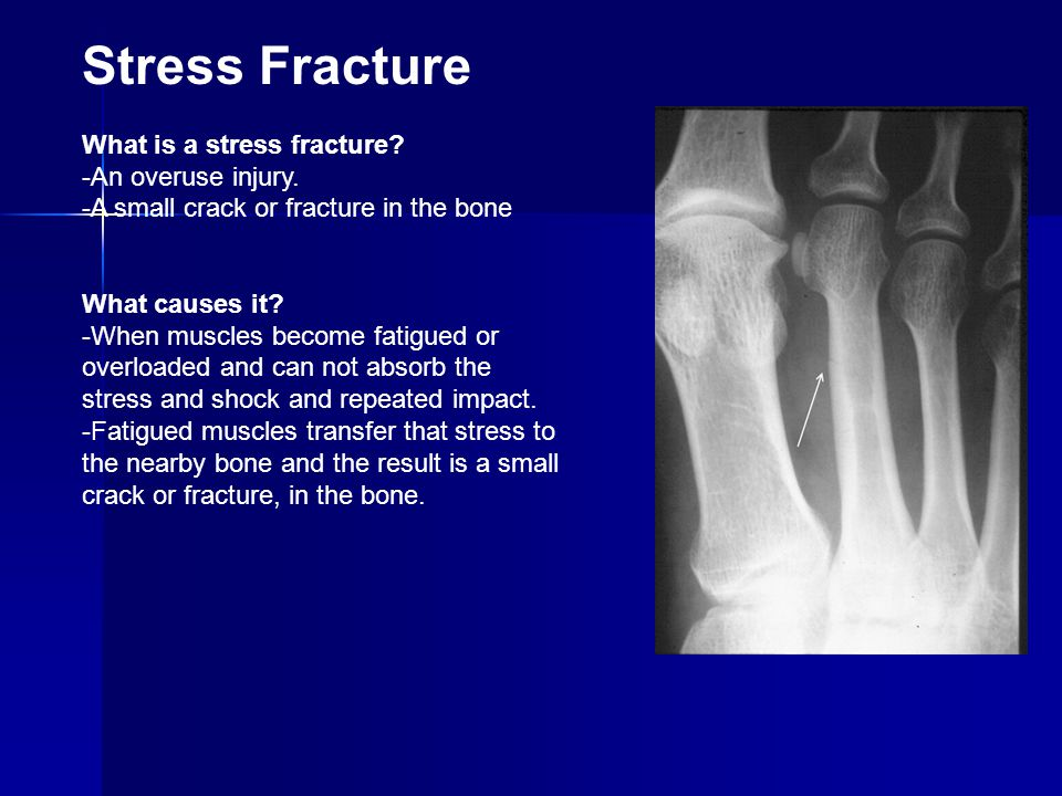 Stress Fracture What is a stress fracture -An overuse injury.