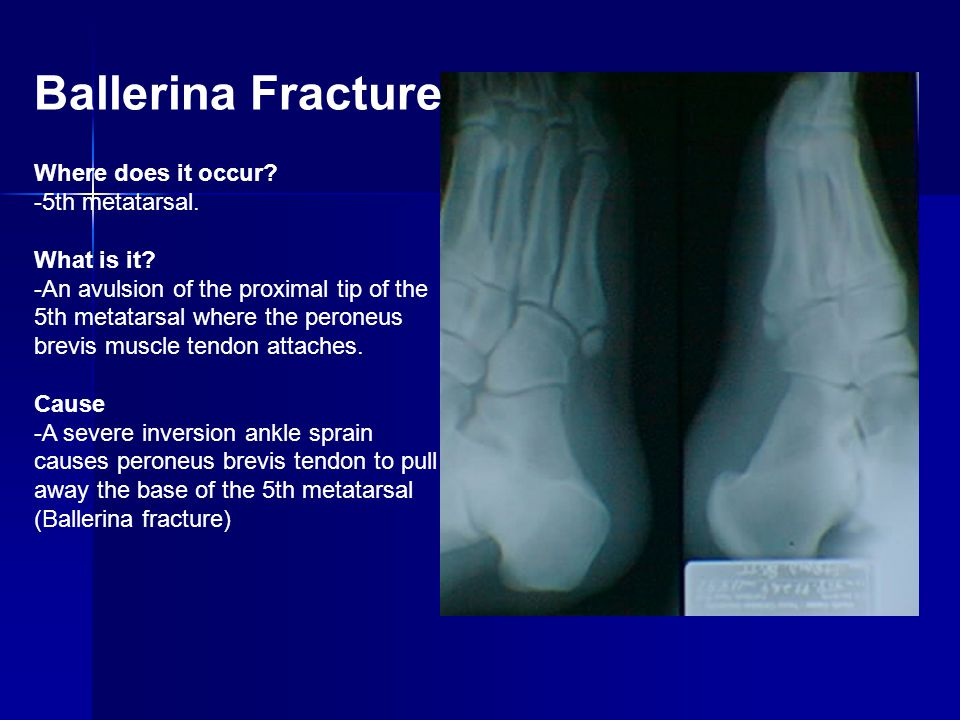 Ballerina Fracture Where does it occur -5th metatarsal. What is it
