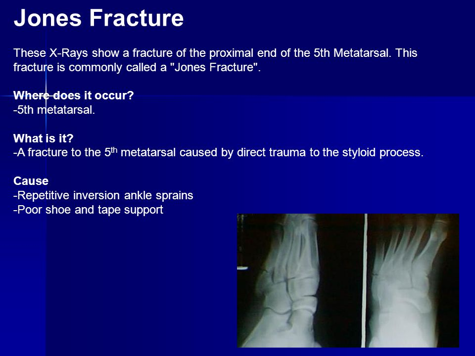Jones Fracture These X-Rays show a fracture of the proximal end of the 5th Metatarsal. This fracture is commonly called a Jones Fracture .