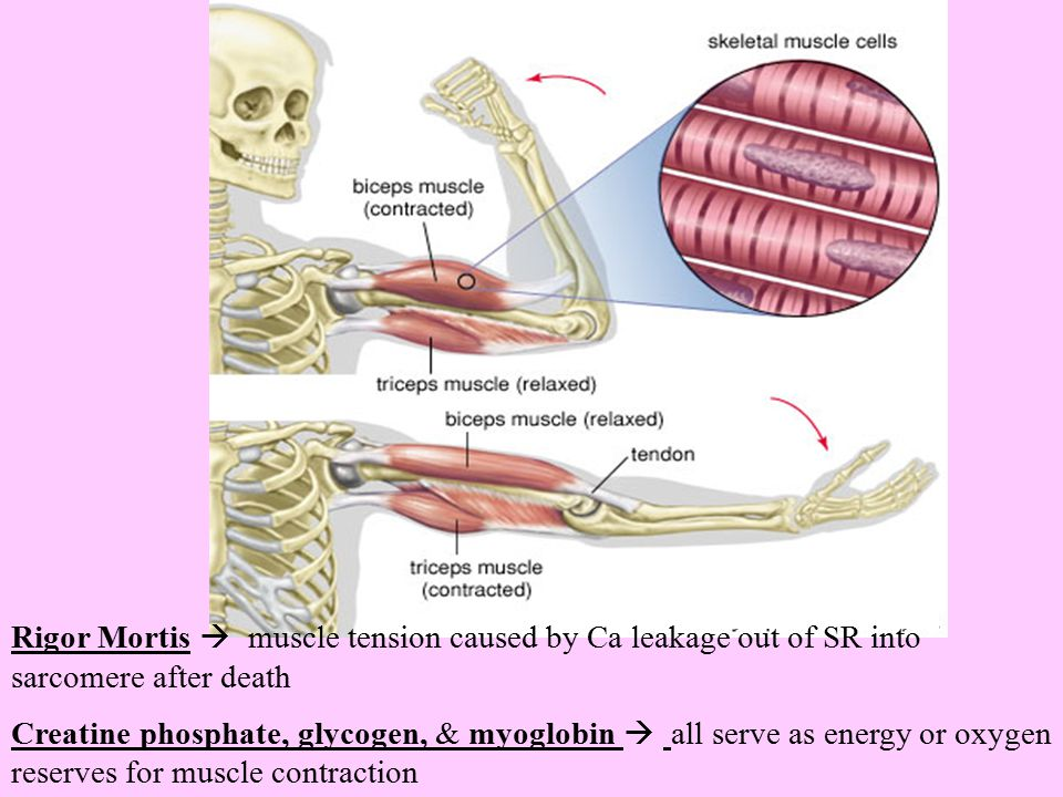 Rigor Mortis  muscle tension caused by Ca leakage out of SR into sarcomere after death
