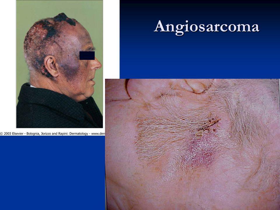 Angiosarcoma