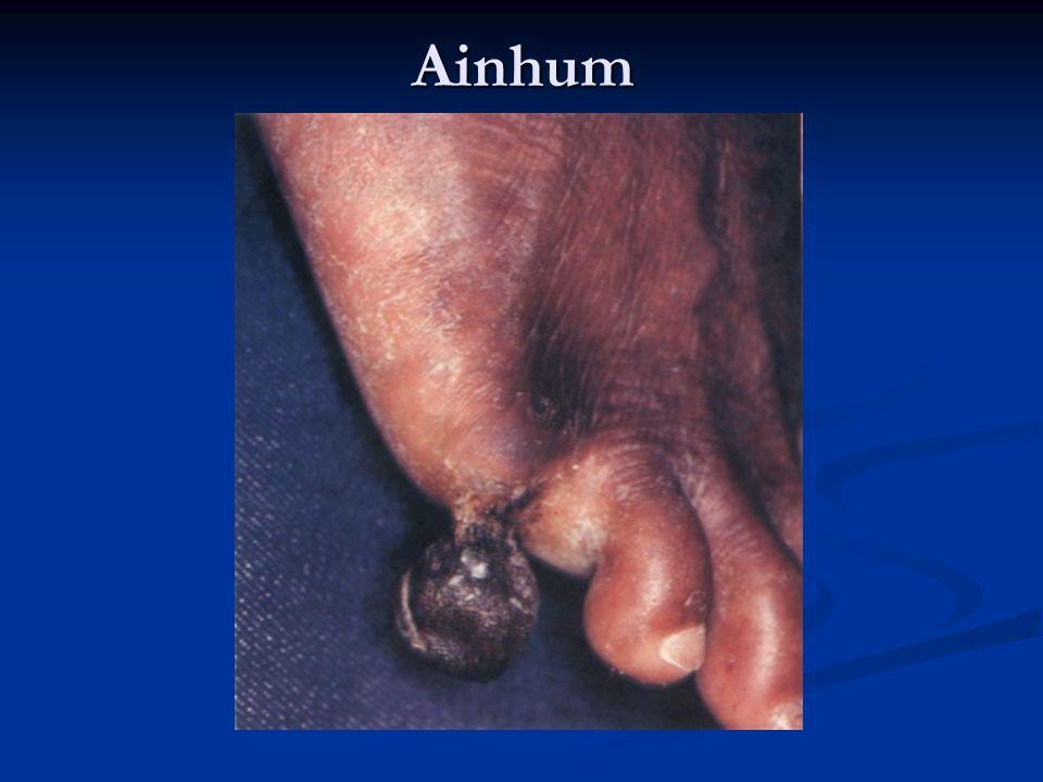 Ainhum