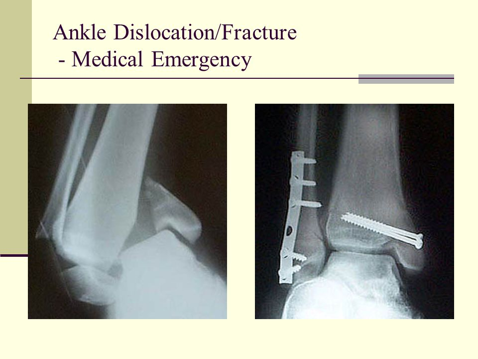 Ankle Dislocation/Fracture - Medical Emergency