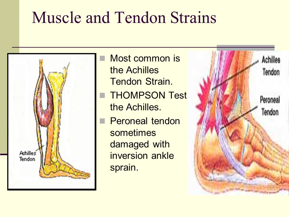 Muscle and Tendon Strains