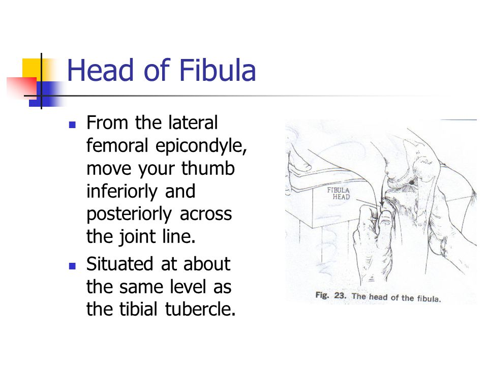 Head of Fibula From the lateral femoral epicondyle, move your thumb inferiorly and posteriorly across the joint line.