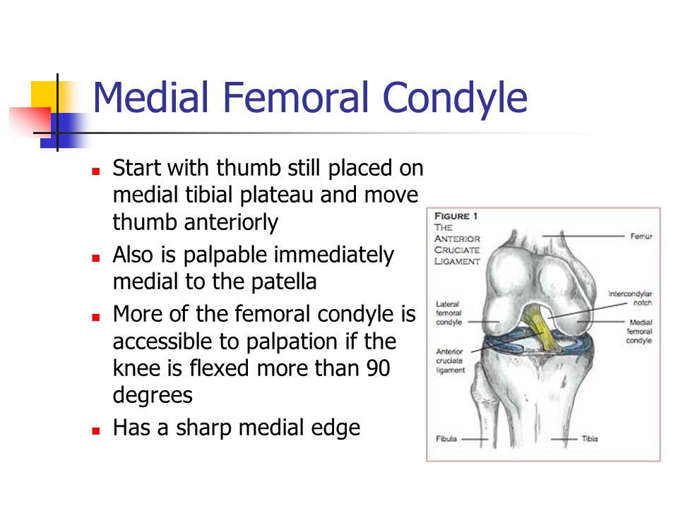 Medial Femoral Condyle