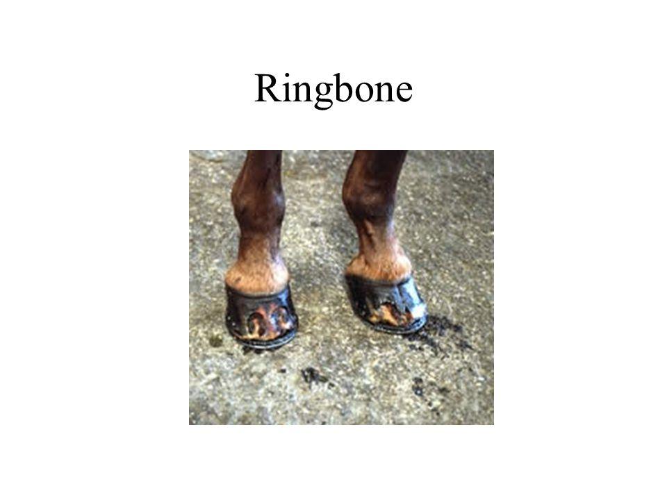 Ringbone