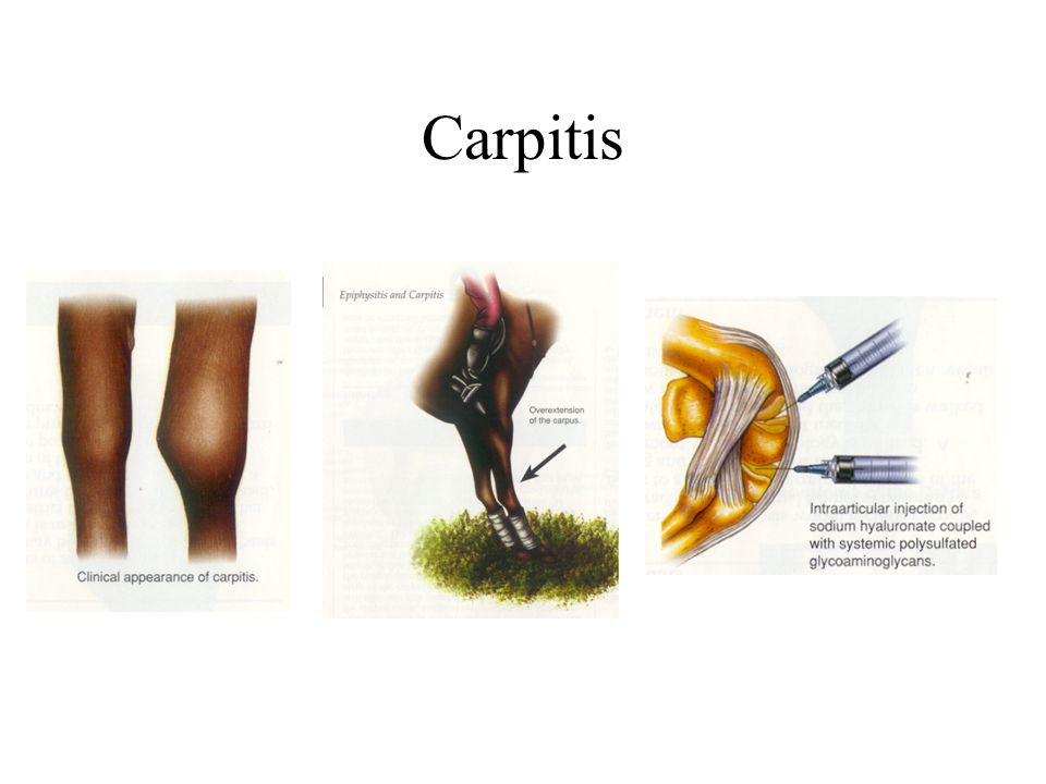 Carpitis
