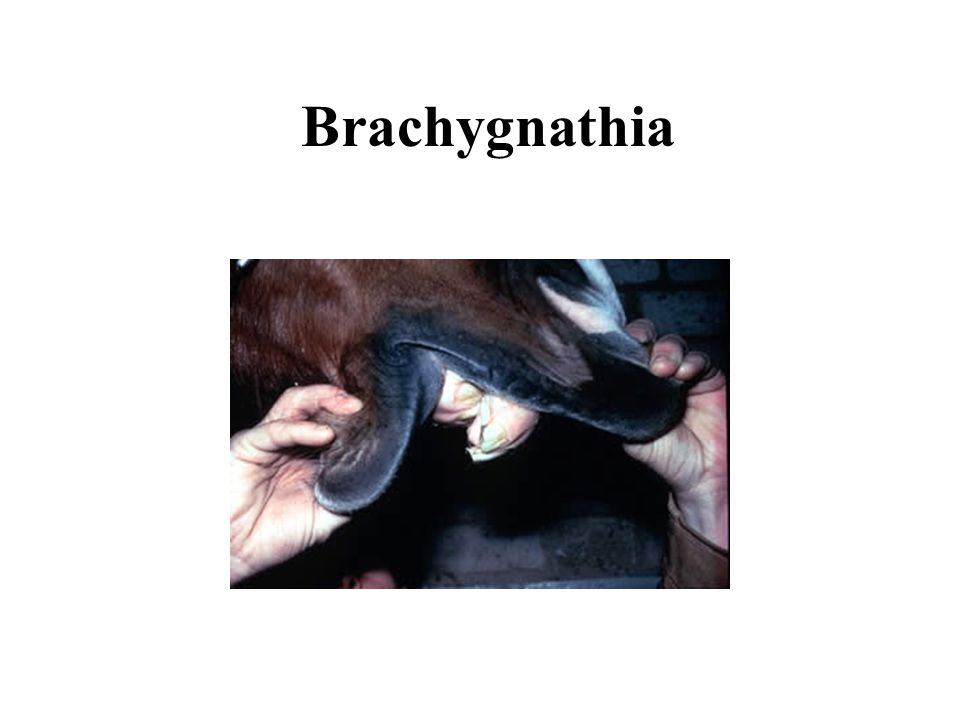 Brachygnathia