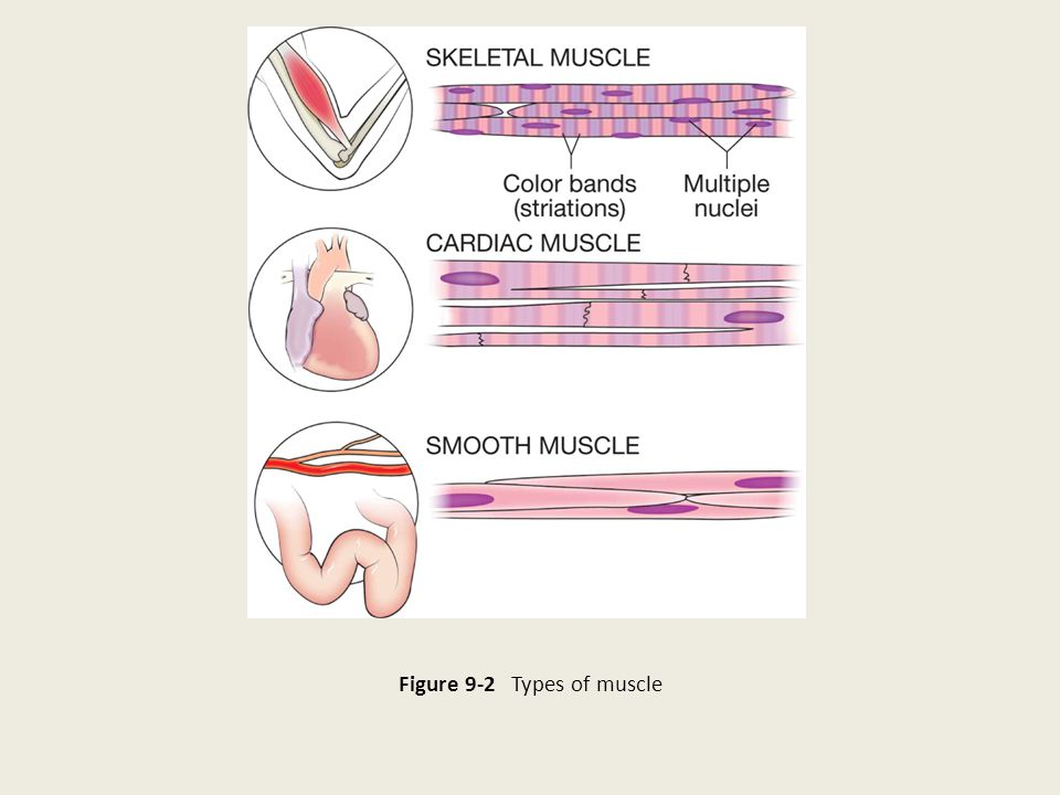 Figure 9-2 Types of muscle