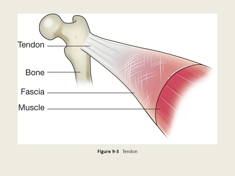 Figure 9-3 Tendon 15