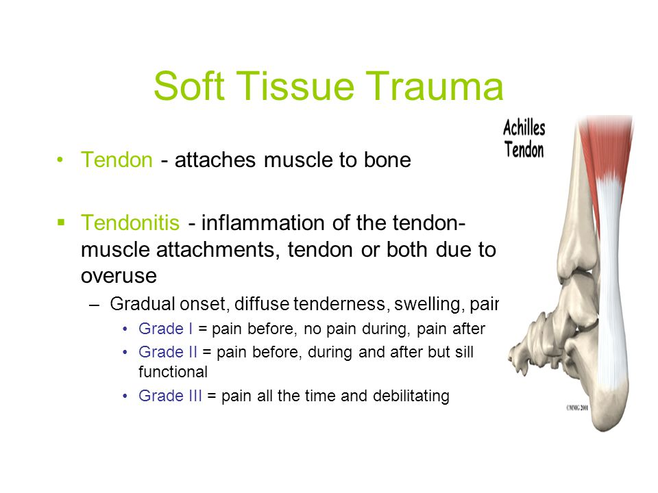 Soft Tissue Trauma Tendon - attaches muscle to bone