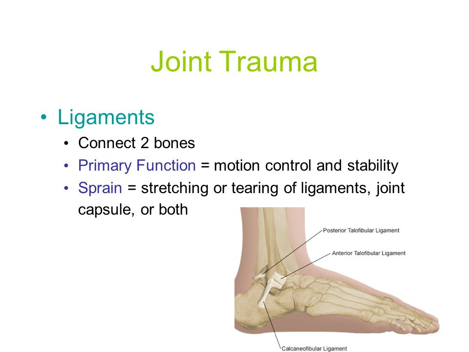 Joint Trauma Ligaments Connect 2 bones